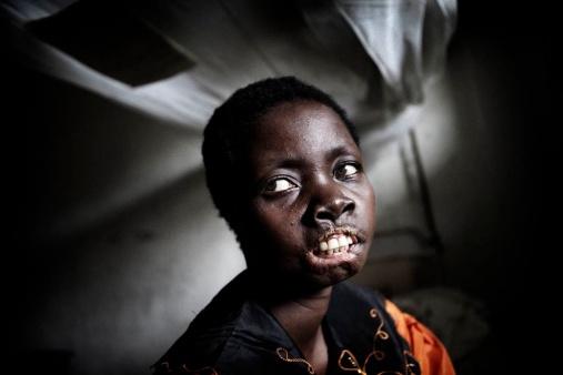 Abandoned Lives - Forgotten Children